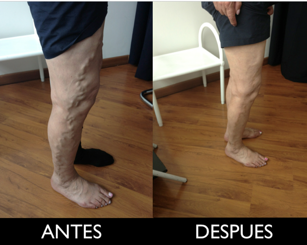 Fotos de CLINICA DE VENAS DR. VALDERRAMA